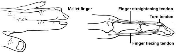 Mallet Finger | Health | Patient.co.uk