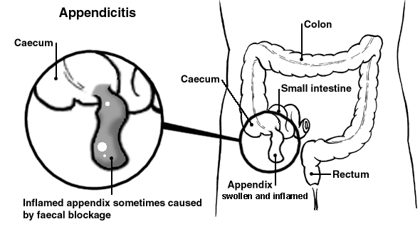 appendicitis. symptoms & treatment of appendicitis | patient, Human Body