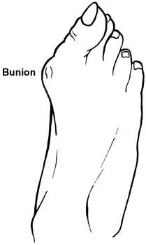 Bunion Pain