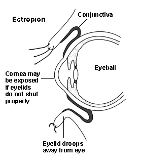 Eyelid Diagram