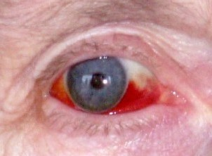 subconjunctival haemorrhage. causes of red eye, information | patient, Skeleton