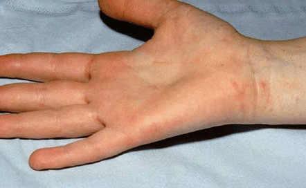 scabies | health | patient, Human Body