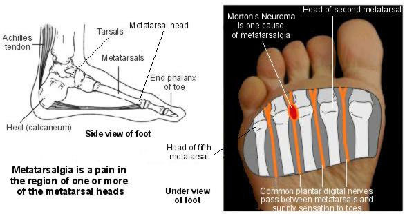Резултат с изображение за metatarsal heads of the foot