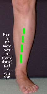 shin splints (270.jpg)