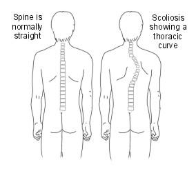 scoliosis (275.jpg)