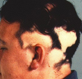 alopecia on the scalp in someone with fairly extensive alopecia areata
