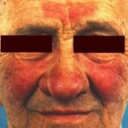 rosacea on face (299.jpg)