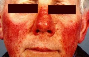 rosacea on face (300.jpg)