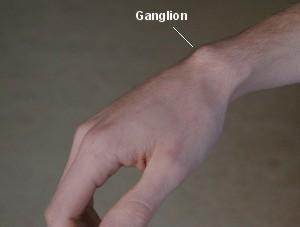 Ganglion of wrist
