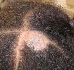 Fungal Infection On Scalp
