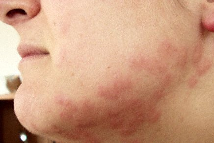 Bedbug Bites, Andy Brookes via http://commons.wikimedia.org/wiki/File:Bedbug_bites.jpg