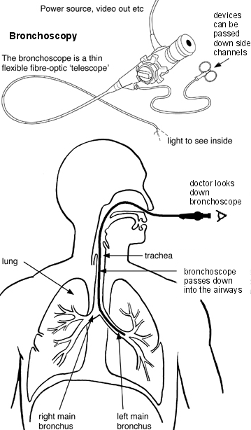 Diagram showing how a bronchoscopy is performed
