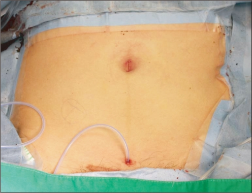 open access photo of abdominal surgical drain