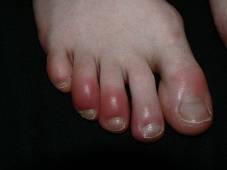 Chilblains on the toes