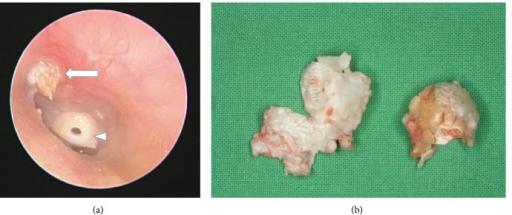 Open access picture of cholesteatoma from openi.nlm.nih.gov
