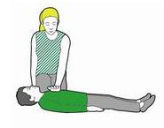 CPR child 2