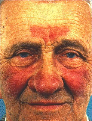 ROSACEA -ON FACE AND FOREHEAD