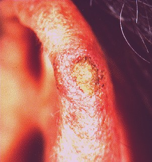 SOLAR KERATOSIS -ON EAR