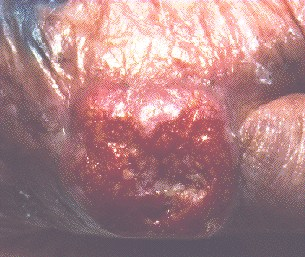 SQUAMOUS CELL CARCINOMA -OF HAND