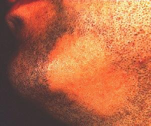 ALOPECIA AREATA - OF BEARD