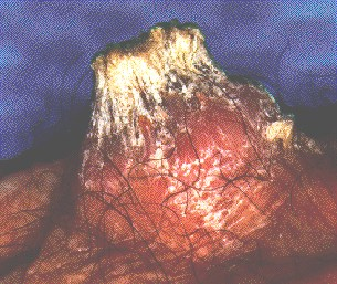 SQUAMOUS CALL CARCINOMA -WITH KERATIN