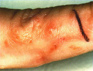SCABIES -BURROWS ON FINGER