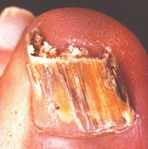 TINEA UNGUUM -NAIL CLOSE UP
