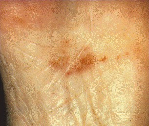 TINEA PEDIS -ON SOLE
