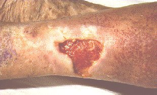 VENOUS LEG ULCER -LARGE