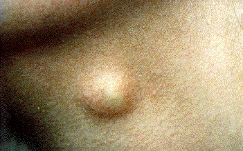 DERMOID CYST -ON NECK
