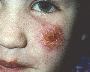 impetigo | health | patient, Cephalic Vein