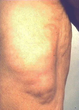 LIPOMA -LARGE