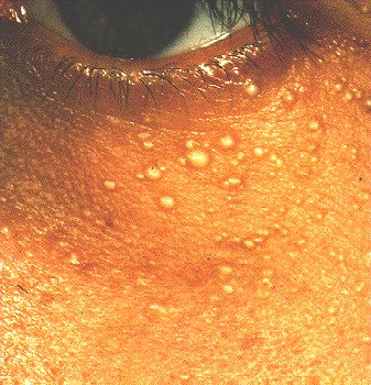 Multiple erythematous patches cheeks
