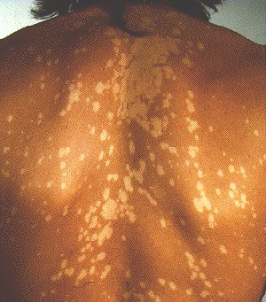 PITYRIASIS VERSICOLOR -ON BACK
