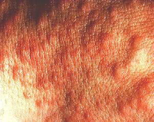 POLYMORPHIC LIGHT ERUPTION - CLOSE UP