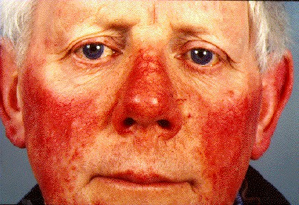 ROSACEA -ON FACE