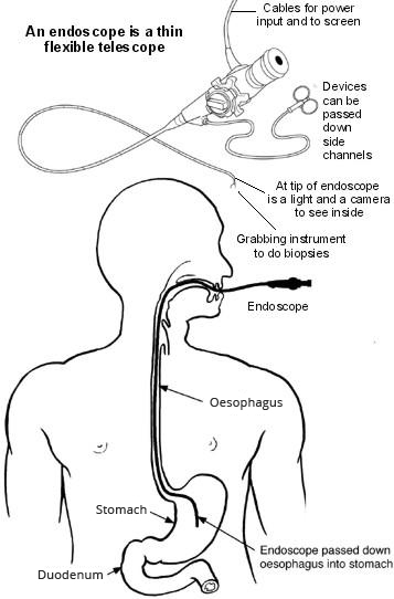 endoscopy information  uses for endoscopy
