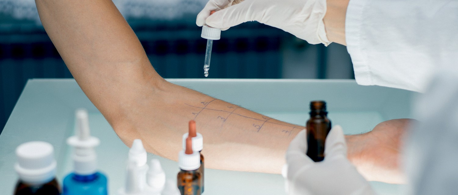 Are private allergy tests worth it? | NHS Allergy Testing