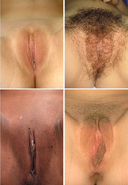 Vulva images 1 Wiki