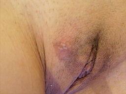 Genital herpes woman (Wiki)