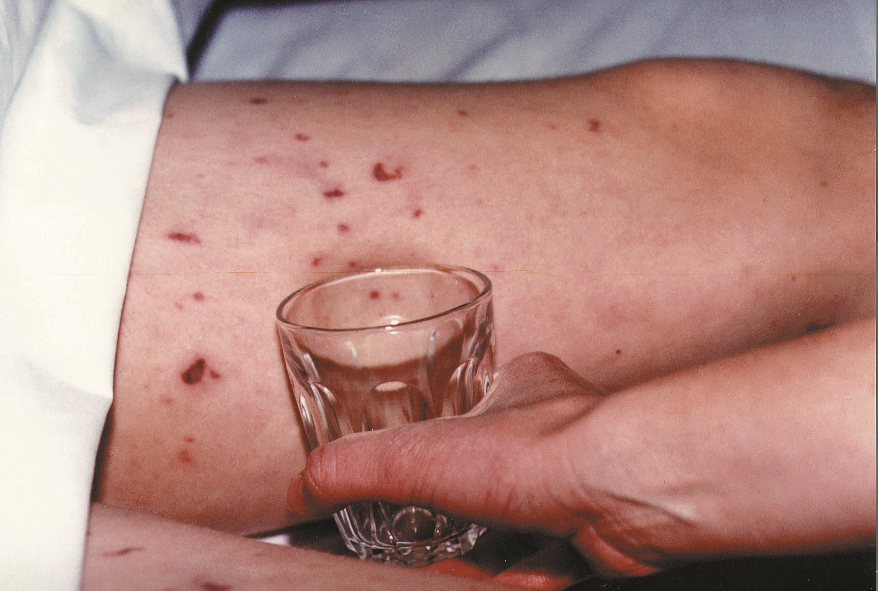 Glass test for meningitis rash