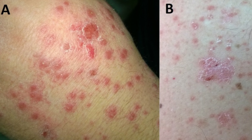 guttate psoriasis | health | patient, Skeleton