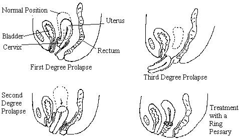 Diagram Uterine Prolapse Circuit Diagram Symbols