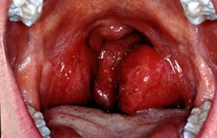 Inflamed and ulcerated tonsils