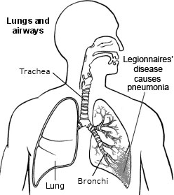 legionnaires' disease. information about legionnaires' disease, Human Body