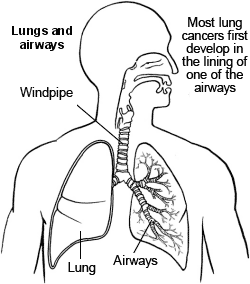 Lungs and airway - lung cancer