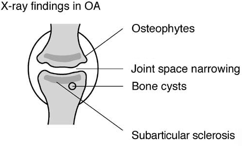 Osteoartitis X-ray