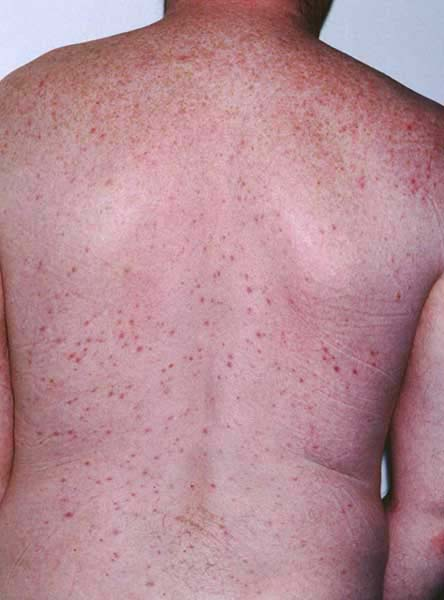 Folliculitis and furuncles / carbuncles (boils) | Primary ...