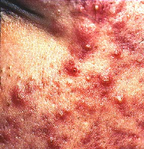oral steroids for cystic acne