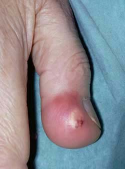 Fast Facts About Gout - National Institutes of Health